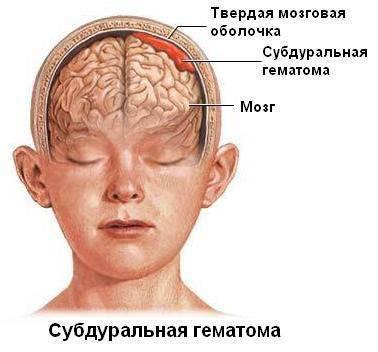 Шишка на лбу не рассасывается - кто сталкивался - запись пользователя ольга (id2047357) в сообществе здоровье новорожденных в категории падение малыша - babyblog.ru