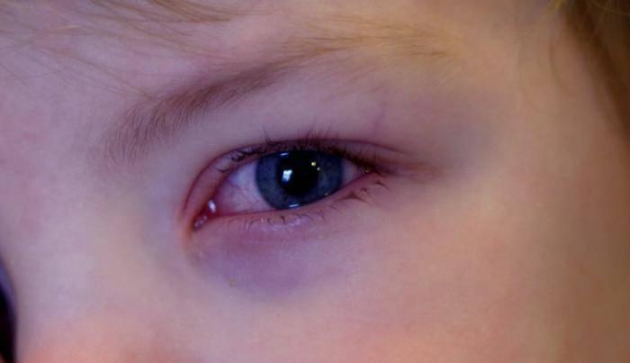 Красный глаз у грудничка, ребенка 6 месяцев, годовалого: причины у грудных детей, что делать, если белок покраснел, слезится