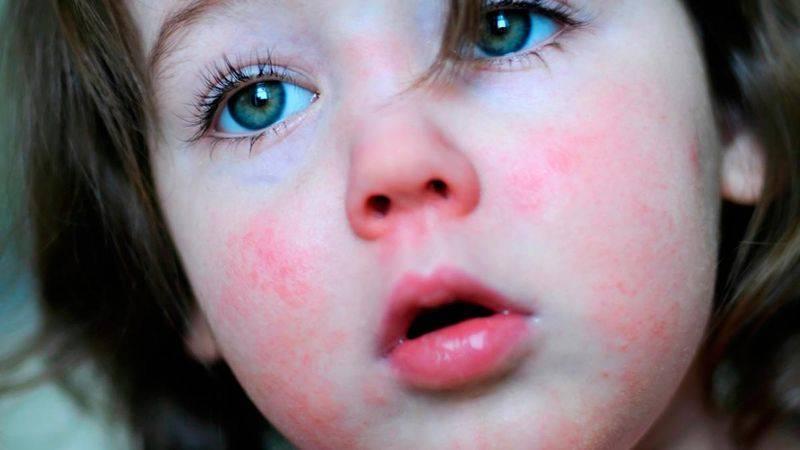 Белые точки на носу у новорожденных – заболевание или норма?