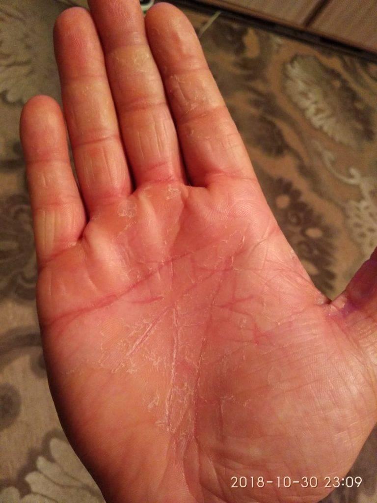Шелушатся кончики пальцев на руках у ребенка причины и лечение
