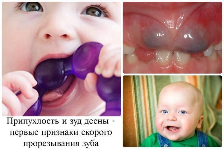 Общие и тревожные симптомы прорезывания зубов у детей после года