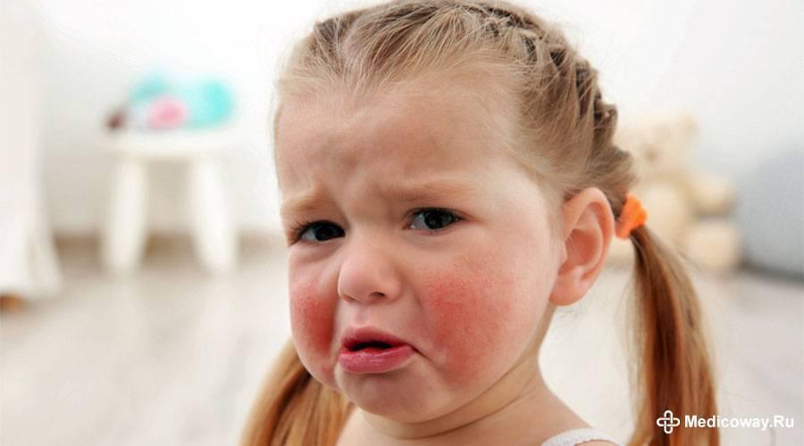 Аллергия на памперсы? - запись пользователя дарья (dvasina) в сообществе детские болезни от года до трех в категории аллергия - babyblog.ru