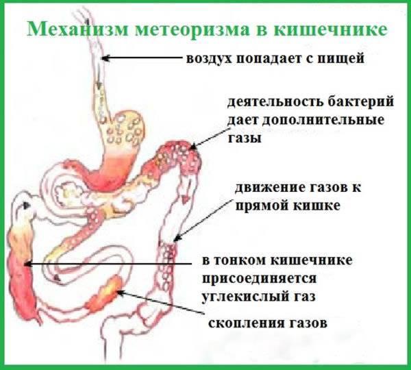 Пукает с запахом... - запись пользователя людмила (slyudmila) в сообществе здоровье новорожденных в категории стул новорожденного - babyblog.ru