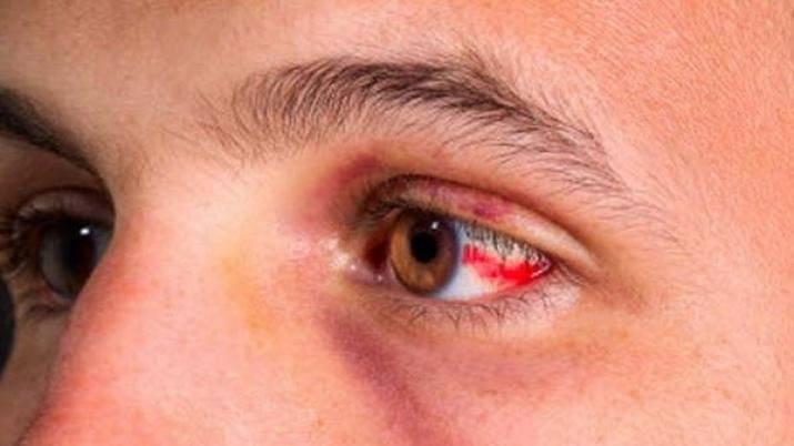 Почему у грудничка покраснели глаза и насколько это опасно?