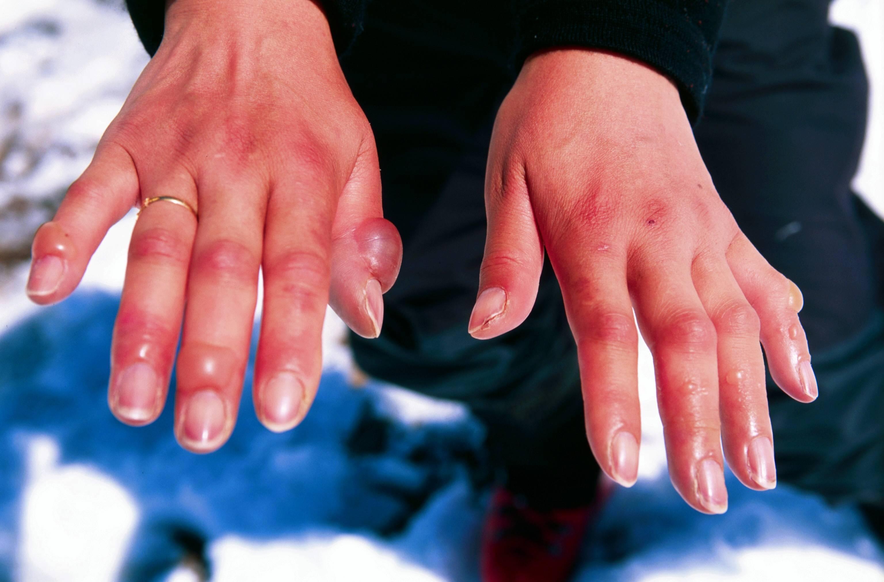 Почему у ребенка холодные руки и ноги, и что делать?