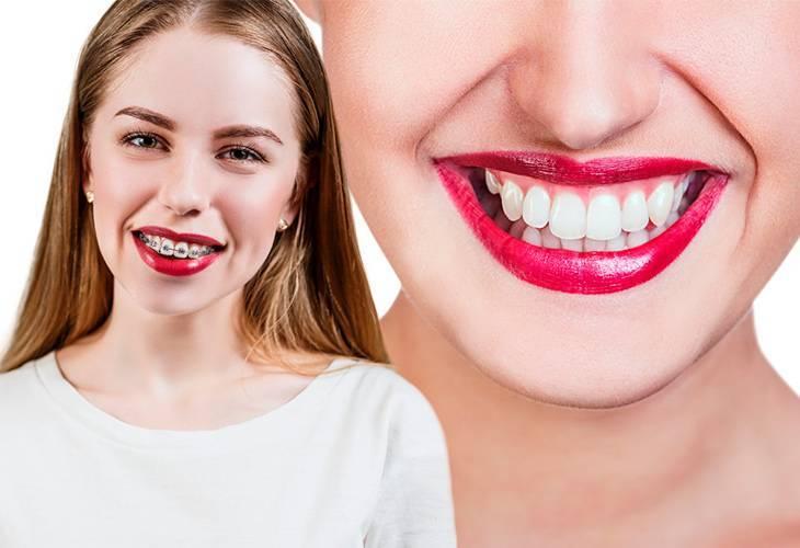 Почему молочные зубы прорезываются не по порядку
