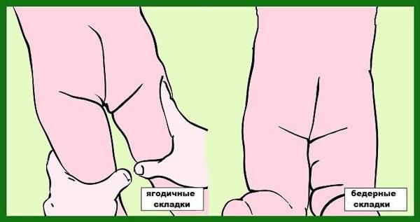 Разные складки на ножках - складки на ножках у новорожденных - запись пользователя елена (lena178) в сообществе здоровье новорожденных в категории ортопедия - babyblog.ru