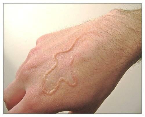 Анализ кала на гельминты
