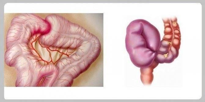 Врожденная патология кишечника у новорожденных