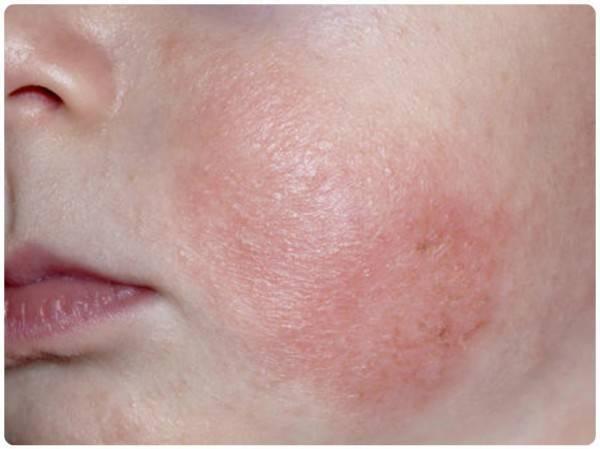 Аллергия в виде гусиной кожи и причины: на руках, ногах у взрослого и ребёнка
