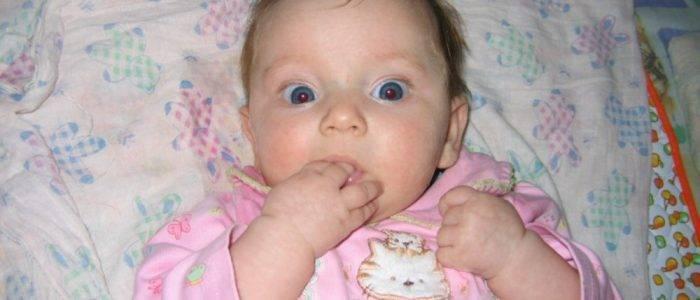 Simptom-grefe - запись пользователя екатерина (katyaf) в сообществе здоровье новорожденных в категории неврология - babyblog.ru
