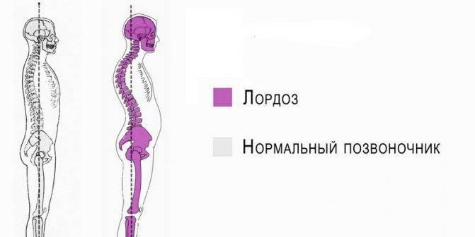 Неровная голова в 2 месяца( - запись пользователя anastasia (id1127961) в сообществе здоровье новорожденных в категории рахит и его профилактика - babyblog.ru