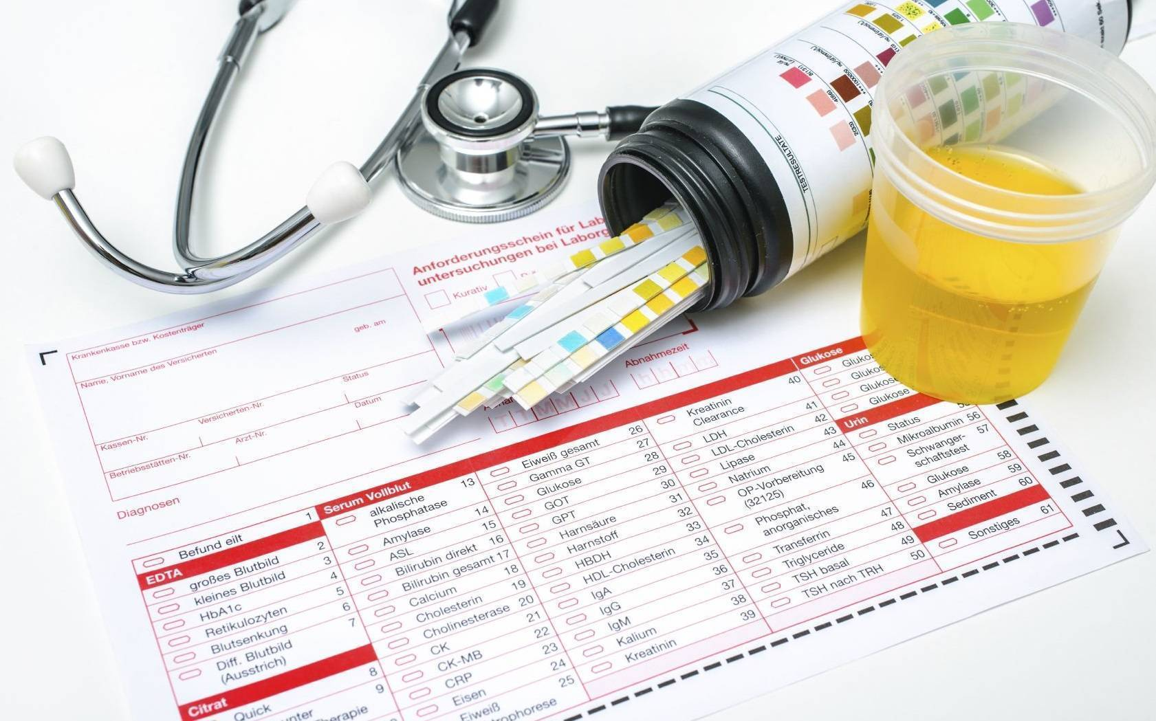 Анализ мочи по сулковичу у грудничка