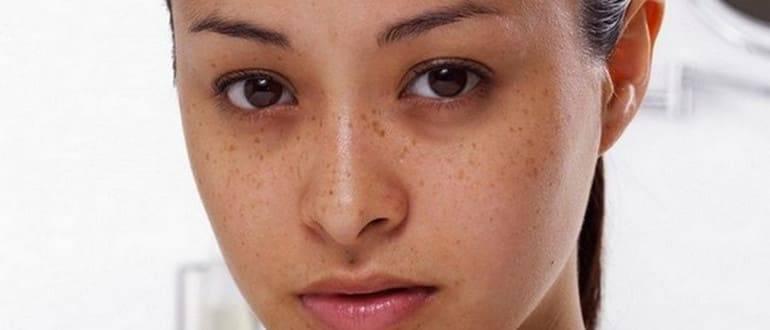 5 возможных причин синяков под глазами