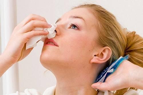 Причины носового кровотечения у грудничка. первая помощь родителей