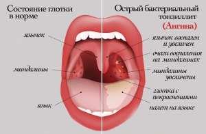 Боли в горле у грудничка: причины, симптомы, лечение