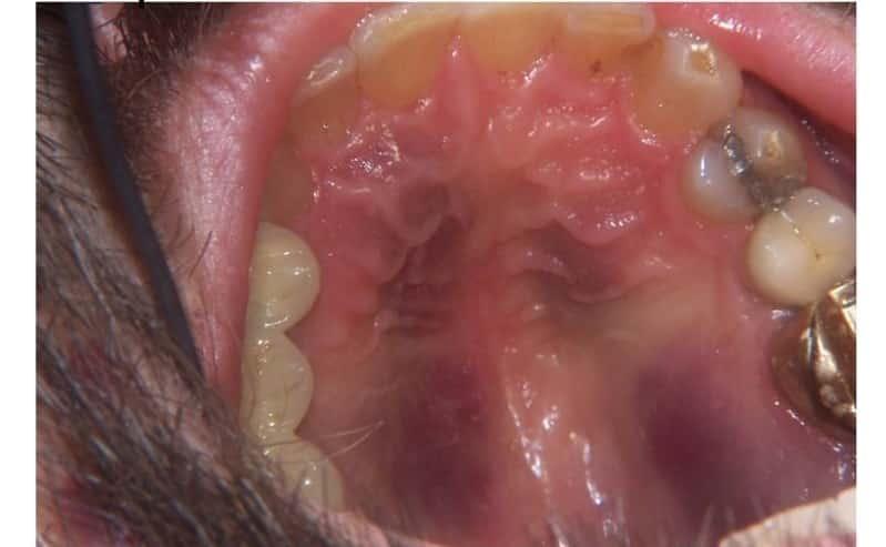 Красные точки в горле у ребенка с температурой и без нее
