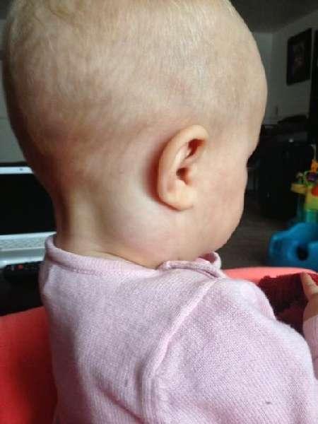 Шишка за ухом на кости у ребенка – что делать, если появилась шишка и уплотнение 2019