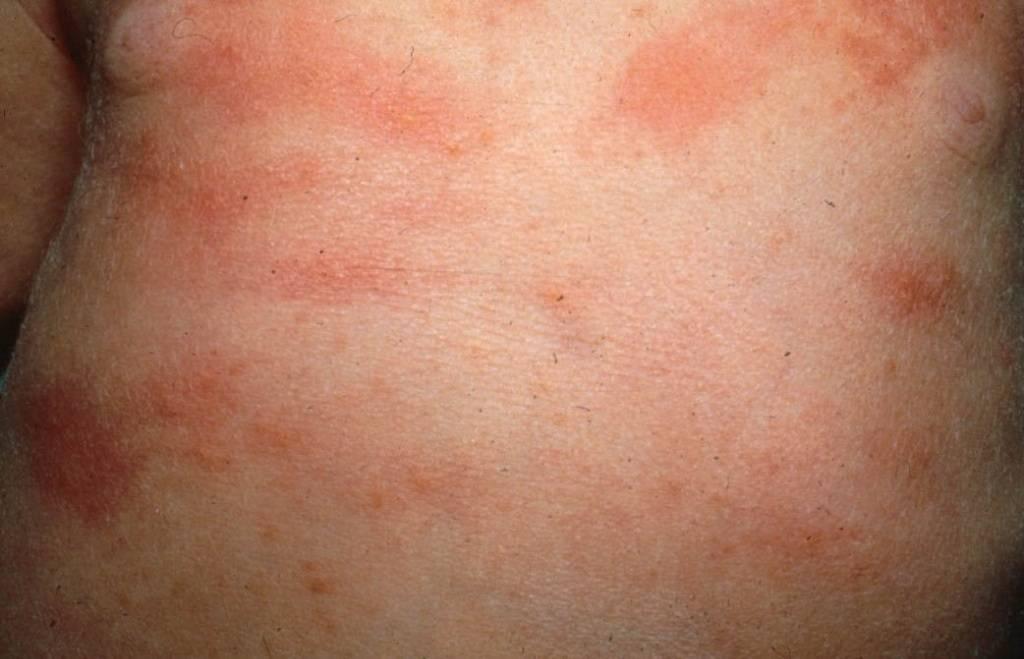 Сыпь на теле у ребенка фото с пояснениями