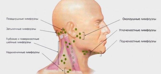 Увеличены подчелюстные лимфоузлы у ребенка: причиныи лечение