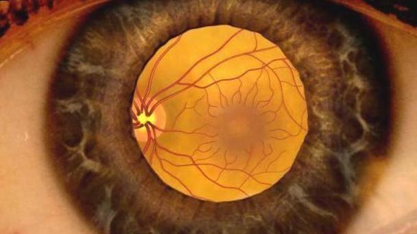 Ангиопатия сетчатки глаза у ребенка: что это такое, лечение