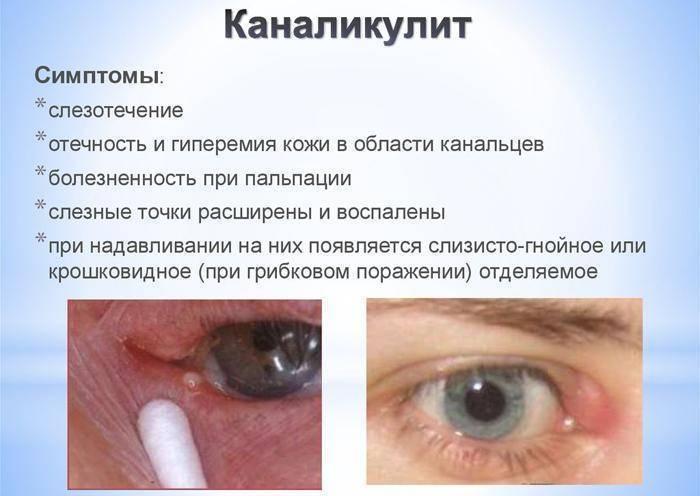 Правильный массаж при дакриоцистите - запись пользователя leno4ek (klenka118) в сообществе здоровье новорожденных в категории болезни глаз - babyblog.ru