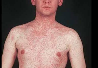 Наиболее частые причины сыпи на теле у ребенка, на руках, на лице, ногах, спине, шее, животе
