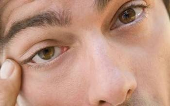 Желтые белки глаз у новорожденного