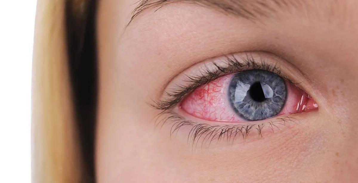 Эффективное лечение выделений из глаз
