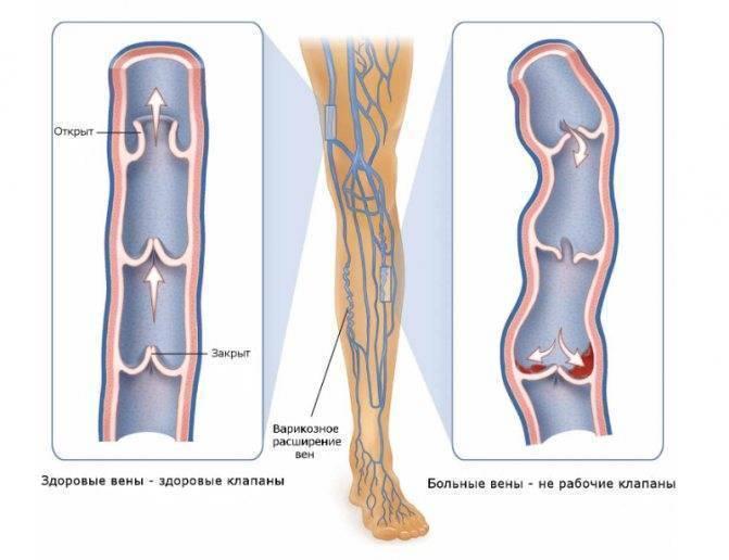 Болят ноги после болезни ребенка