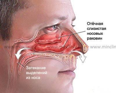 Что делать если в нос ребенку попало инородное тело