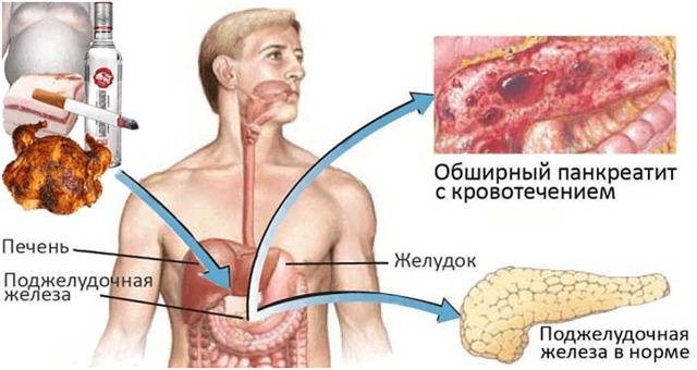 Признаки болезни поджелудочной железы симптомы где болит