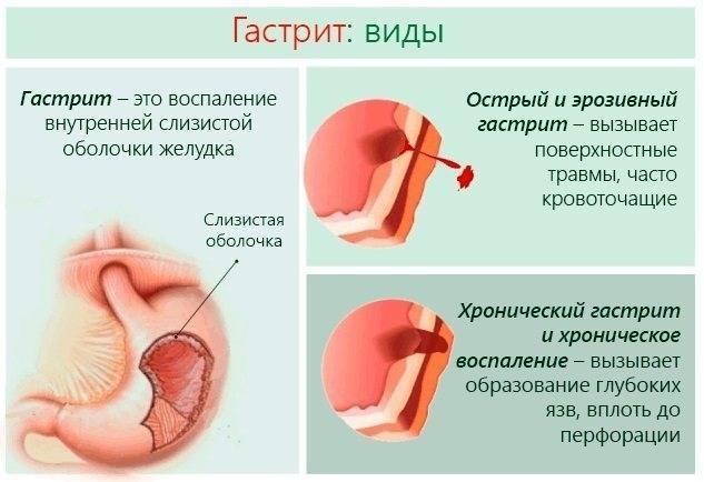 Что принять при боли в желудке? обзор эффективных препаратов