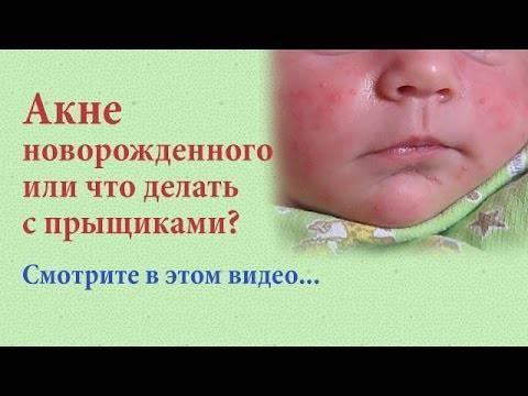 Что такое акне у новорожденных, почему появляется и как лечить