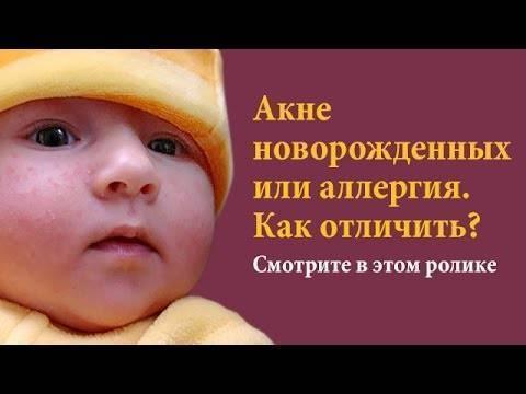 Акне новорожденных - акне новорожденных фото - запись пользователя маринасан (marinasan) в дневнике - babyblog.ru
