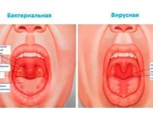 Что делать, если покраснело горло у грудничка?