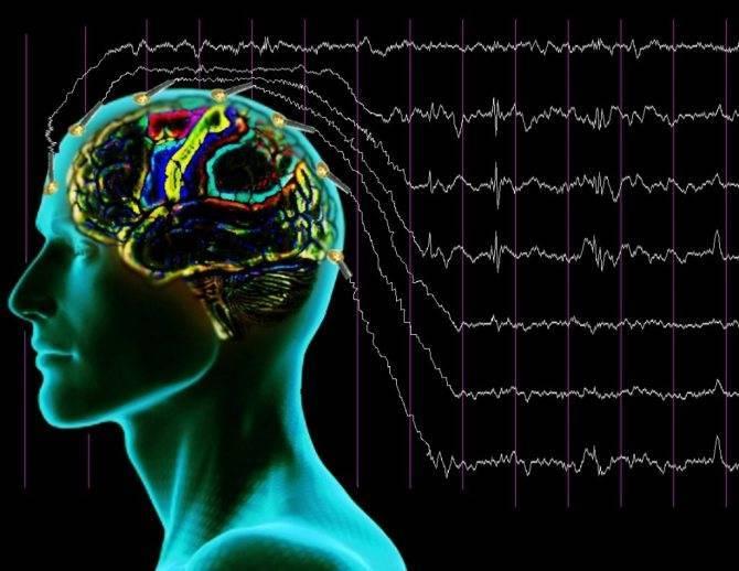 Энцефалограмма головного мозга (ээг) ребенку: что показывает и как делают процедуру