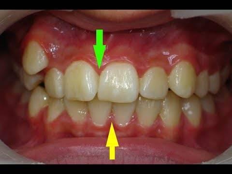 Неужели зубы так изводят ребенка? - как лезут зубы у детей - запись пользователя анюtа (annamatiu) в сообществе здоровье новорожденных в категории зубки и проблемы во время прорезывания - babyblog.ru