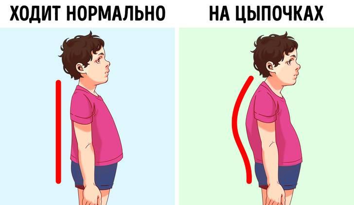 Ребенок 3,5 года ходит на носочках! подскажите хорошего ортопеда?