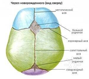 Деформация черепа