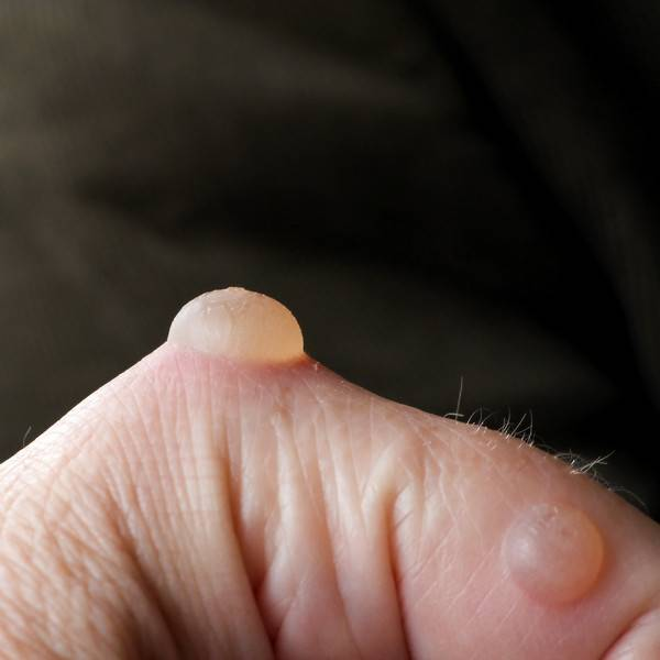 Сыпь у ребенка на ногах и руках без температуры, с температурой, чешется, не чешется