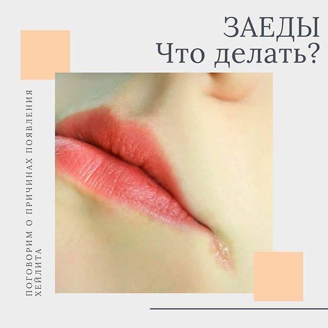 Трещины в уголках рта (ангулярный хейлит): фото, все причины