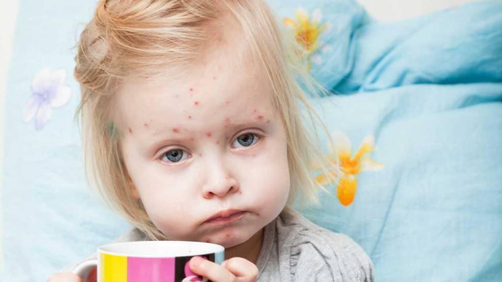Заразен ли ребенок после прививки от кори? - запись пользователя таня (erika) в сообществе детские болезни от года до трех в категории прививки - babyblog.ru