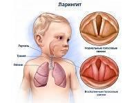 Как узнать болит ли горло у новорожденного горло