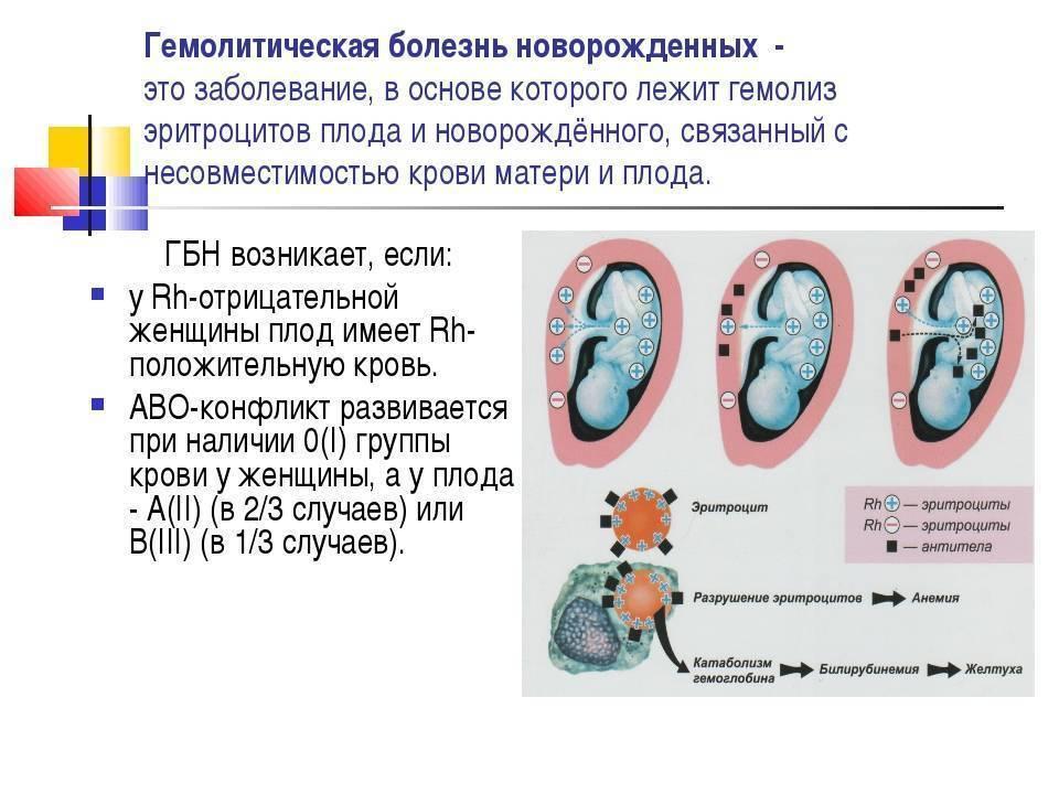 Гемолитическая болезнь новорожденных: причины, симптомы и лечение | беременность