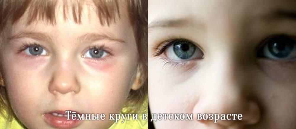 Коричневые синяки под глазами у ребенка. почему у ребенка синяки под глазами