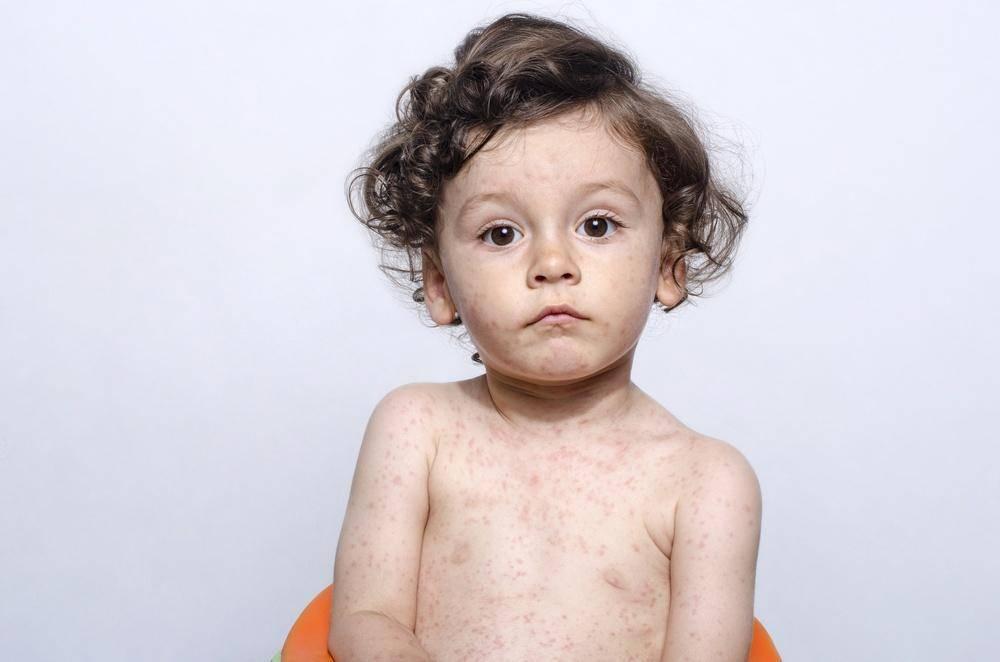 Основыне симптомы кори у детей и ее лечение