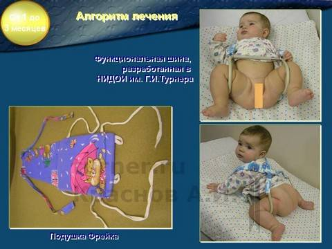 Дисплазия тазобедренных суставов у ребенка 6 месяцев лечение