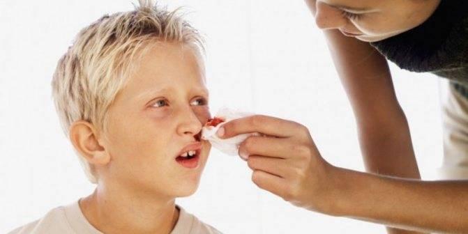 Почему при насморке у ребенка сопли с кровью — возможные причины