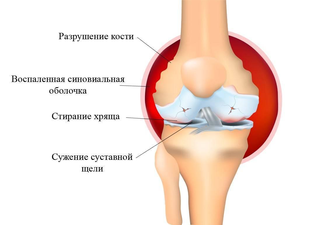 Боль в промежности у мужчин: причины, симптомы и лечение
